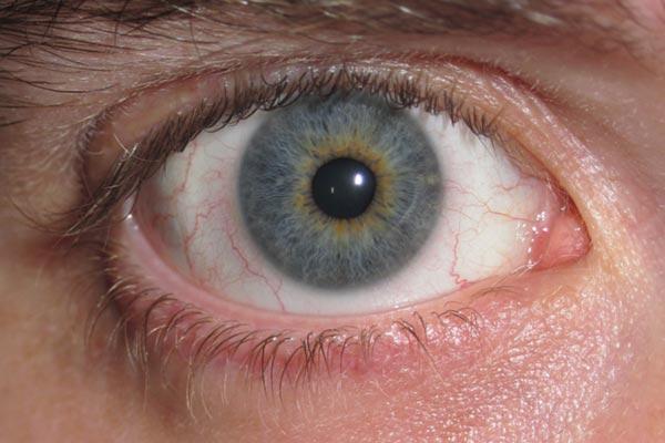 Heterocromía: ¿Por qué algunas personas tienen dos ojos de diferente color?