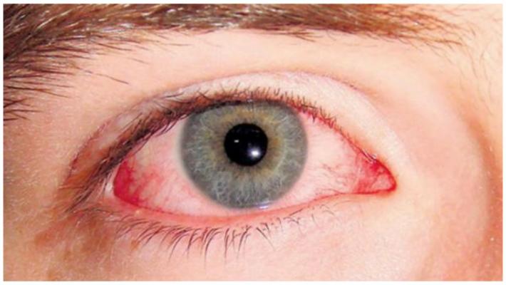 Cáncel ocular